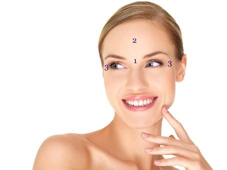 The 3 areas marked on this image identify the most commonly treated areas with Botox Cheshire.