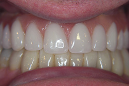 All on 4 Dental Implants Case Study After
