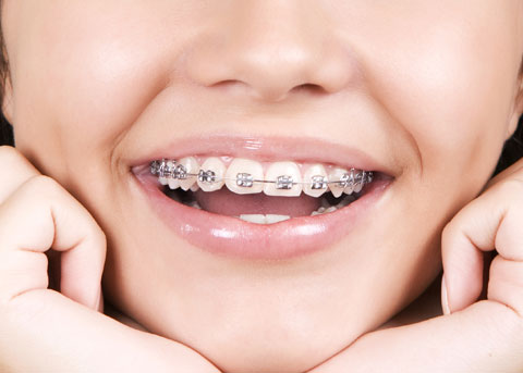 silver-braces-mouth