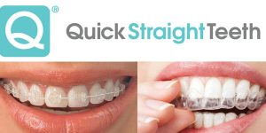 what is quick straight teeth