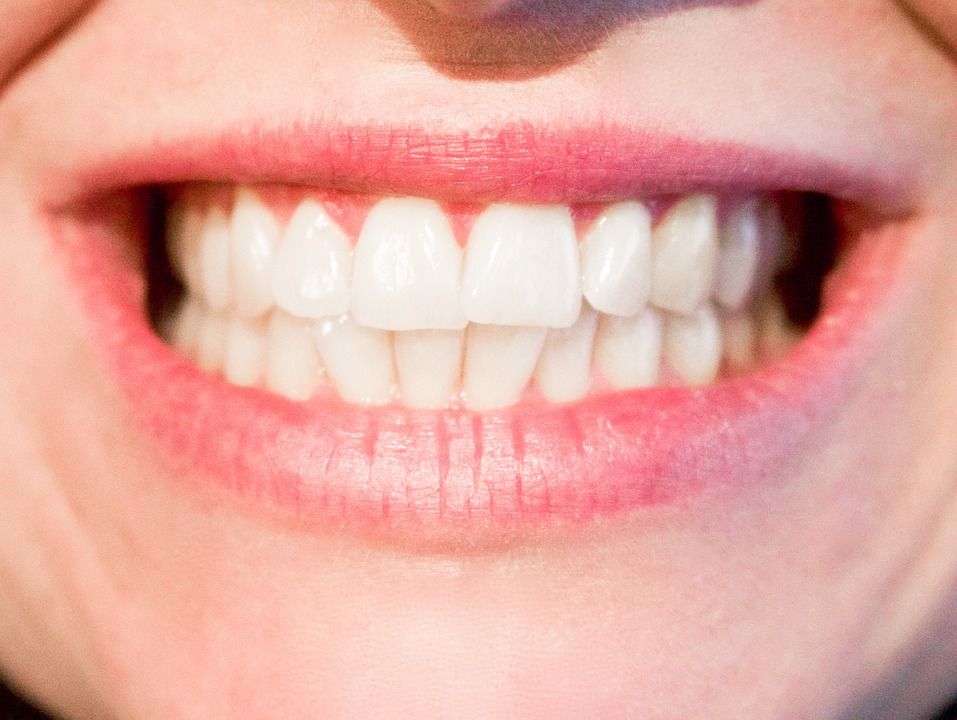 close up of smile showing teeth