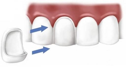 Diagram of veneers