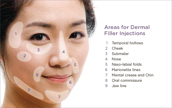 Areas for dermal injections