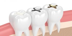 White, Amalgam and Gold tooth fillings