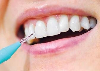 Cleaning teeth with tepe brush