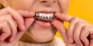 Invisalign retainer being put in mouth
