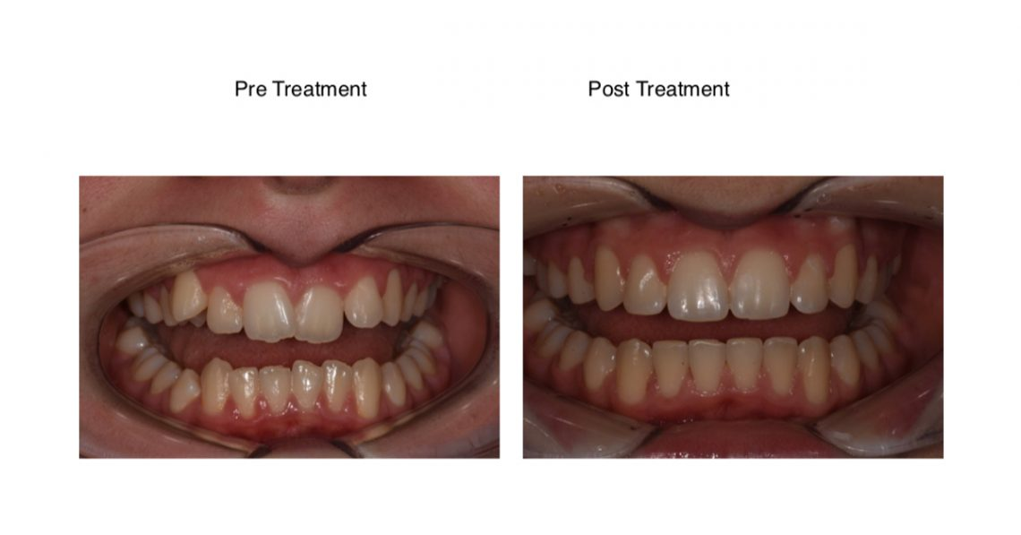 An orthodontic case study of a side by side before and after image after fixed braces for teenagers