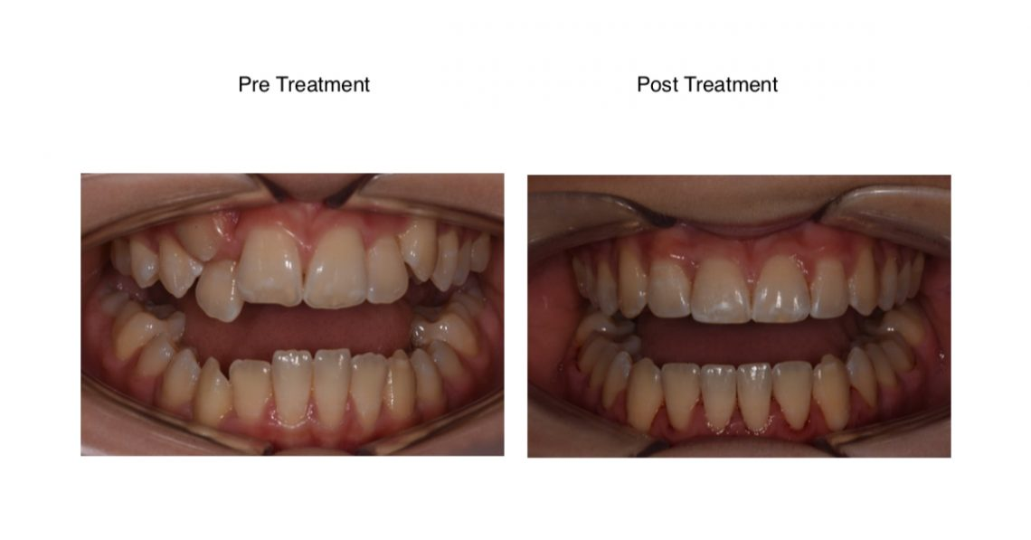 An orthodontic case study showing the before and after braces for teenagers