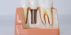 An implant in between two teeth, where the implant is loose.